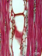 RUTACEAE Zanthoxylum gilletii
