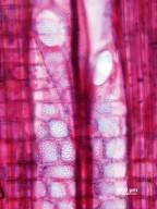 SALICACEAE Casearia sylvestris