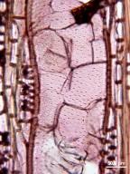 CARYOCARACEAE Caryocar villosum