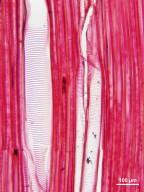 CHLORANTHACEAE Hedyosmum bonplandianum