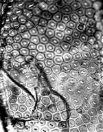 EUPHORBIACEAE Plagiostyles africana