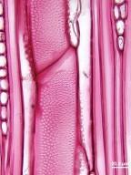 RUTACEAE Zanthoxylum caribaeum