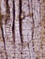 ARALIACEAE Araliaceoxylon miocenica