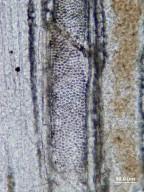 LAURACEAE Richteroxylon micropunctatum