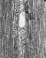 GENTIANACEAE Anthocleista grandiflora