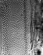 APOCYNACEAE Parahancornia peruviana