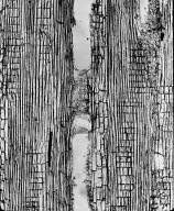 MELASTOMATACEAE Dichaetanthera corymbosa