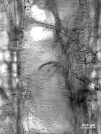 BIXACEAE Cochlospermum vitifolium