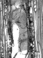 ANACARDIACEAE Pseudospondias microcarpa