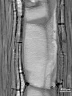CLUSIACEAE Garcinia intermedia
