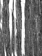 OLACACEAE Heisteria parvifolia
