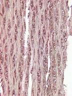 COMBRETACEAE Terminalia buceras
