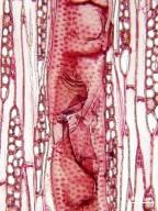 LAURACEAE Endiandra palmerstonii