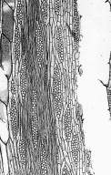 LEGUMINOSAE PAPILIONOIDEAE Ormosia coutinhoi