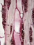 RHAMNACEAE Frangula californica tomentella