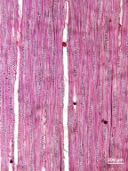RUTACEAE Zanthoxylum mollissimum