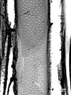 SABIACEAE Meliosma squamulata