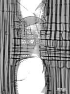 ANACARDIACEAE Choerospondias axillaris