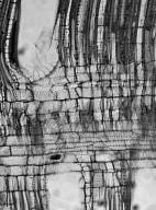 SYMPLOCACEAE Symplocos racemosa