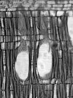 SYMPLOCACEAE Symplocos polyandra