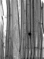 SYMPLOCACEAE Symplocos celastrinea