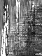 ARALIACEAE Aralia spinosa