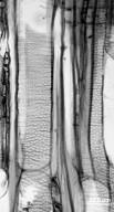 MALVACEAE TILIOIDEAE Tilia americana