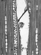 STEMONURACEAE Cantleya corniculata