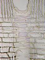 ELAEOCARPACEAE Elaeocarpus bifidus