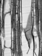 STEMONURACEAE Medusanthera laxiflora