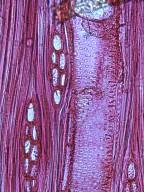 BIGNONIACEAE Ekmanianthe actinophylla