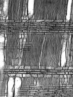 BIGNONIACEAE Zeyheria tuberculosa