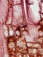MALVACEAE BROWNLOWIOIDEAE Berrya cordifolia