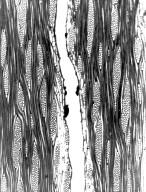 LEGUMINOSAE DETARIOIDEAE Hymenaea verrucosa