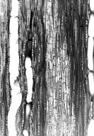 HYPERICACEAE Psorospermum androsaemifolium