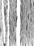 MELASTOMATACEAE Memecylon eduliforme