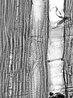 SANTALACEAE Santalum austrocaledonicum