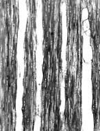 SARCOLAENACEAE Rhodolaena bakeriana