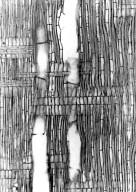 SAPOTACEAE Chrysophyllum perrieri