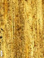ACHARIACEAE Hydnocarpoxylon indicum