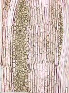 MALVACEAE STERCULIOIDEAE Cola griseiflora