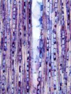 CHRYSOBALANACEAE Hirtella racemosa