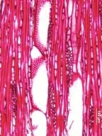 ELAEOCARPACEAE Elaeocarpus stipularis