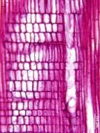SALICACEAE Osmelia phillippinensis