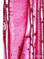 ELAEOCARPACEAE Elaeocarpus ferruginea