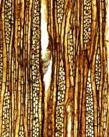 STAPHYLEACEAE Turpinia lamarense