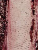 ELAEOCARPACEAE Sloanea medusula
