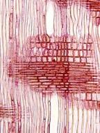 THEACEAE Stewartia pseudocamellia