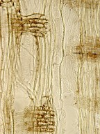 ELAEAGNACEAE Shepherdia argentea