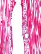 ANACARDIACEAE Spondias lakonensis